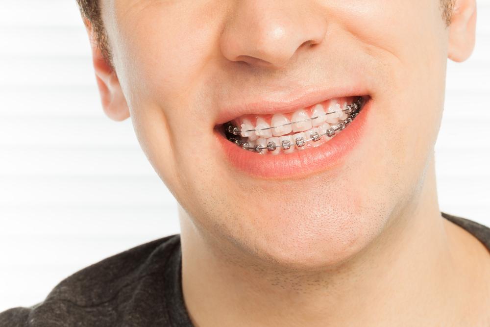 Cara Memutihkan Gigi Secara Alami dan Mudah